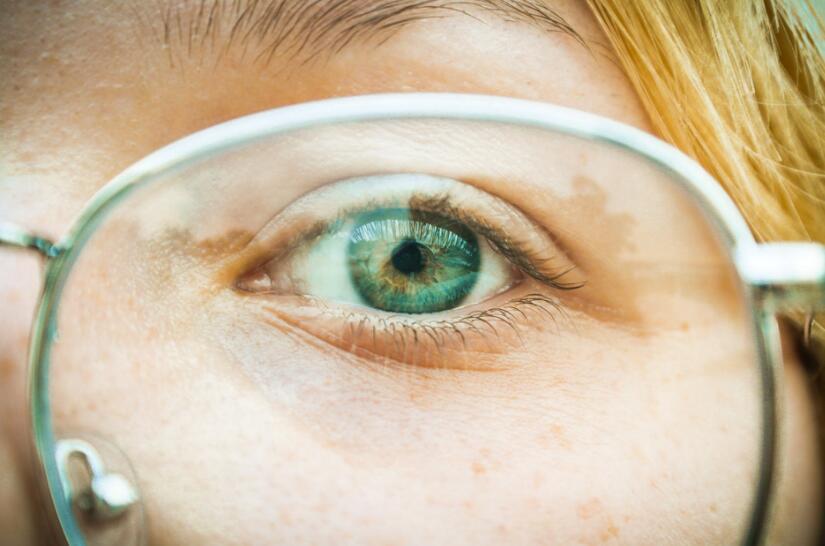 眼底黄斑病变有哪些症状