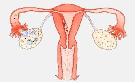 怎么知道输卵管通不通?