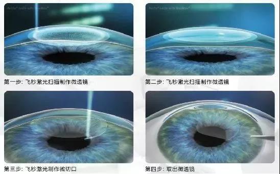 近视党必看!全飞秒、ICL摘镜手术,究竟有什么不一样呢?