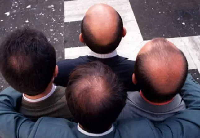脱发后选择植发没效果?时间是最好的答案!