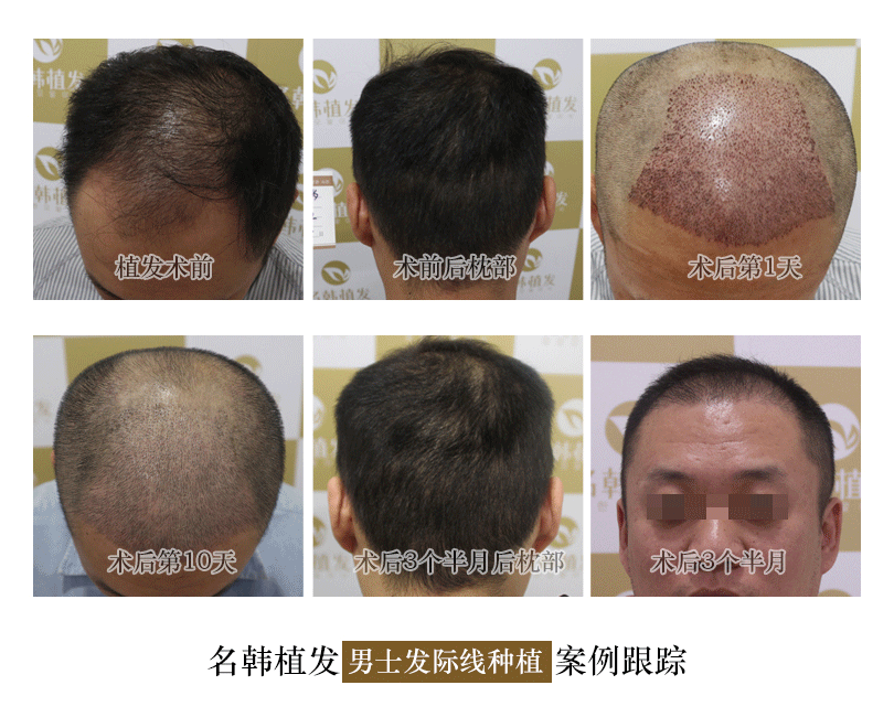 大面積禿頂,植發技術完美解決