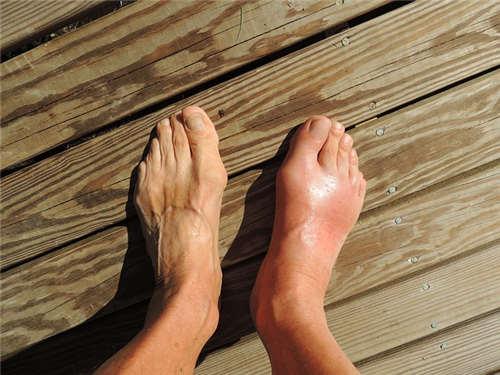导致拇指外翻有哪些原因?具体有哪些症状呢?