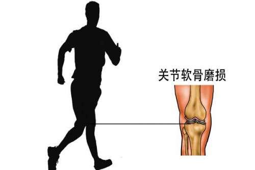 膝关节疼痛缩减关节使用寿命?医生:做好3点,膝关节不疼不肿