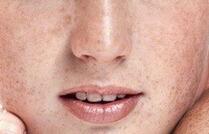 面部除皱术后的消肿方法有哪些?包括哪些项目呢?