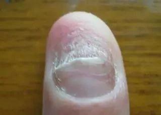 【科普】指甲型银屑病与灰指甲的区别