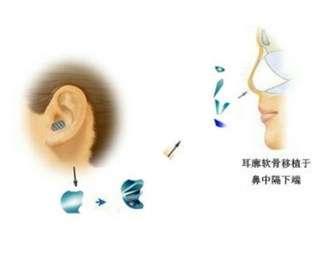 北京哪个医院治疗鼻中隔偏曲比较好,鼻中隔偏曲的预防保健措施有哪些