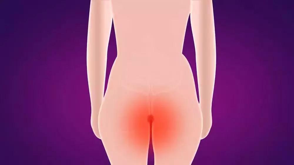 春節過后,出現肛腸疾病問題該怎么處理?