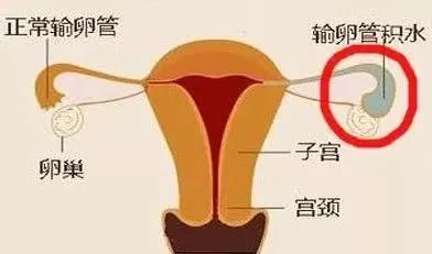 引起输卵管积水都有哪些原因,你了解吗?