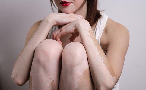 女性腿部的白癜风该如何治疗呢?