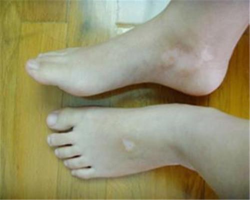 脚部有白癜风该如何治疗呢?