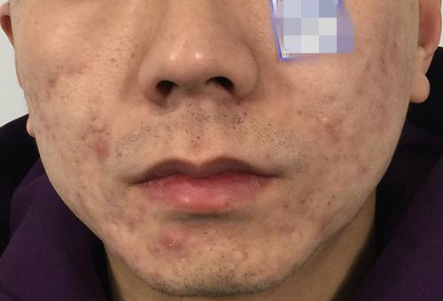 嘴巴周围长痤疮如何治疗?