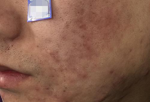 鼻子上长脓包型痘痘处理方法有哪些?