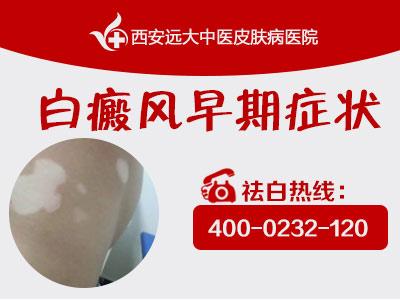 【西安治疗白癜风最正规权威的医院】辛辣刺激性食物对白癜风患者有什么危害?