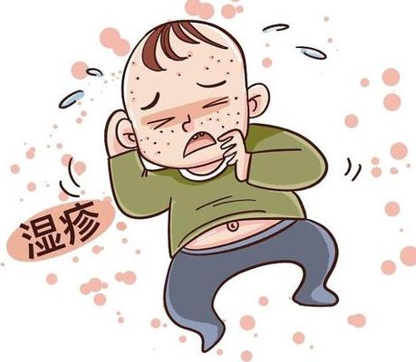 宝宝得了湿疹非常难受,南京皮肤病医院建议家长做好这6大护理,恢复得快!
