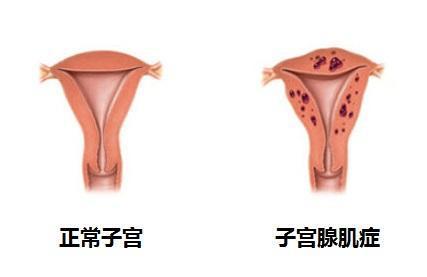 【武汉妇产科医院】得子宫腺肌症中医治疗方式是什么?